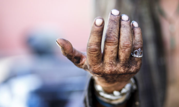 A man who lives primarily on the streets of downtown Phoenix holds up his hand to display a ring he found that he's taken to wearing. (Anya Magnuson/DD)